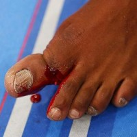 Broken Toe Ragga Jungle Mix